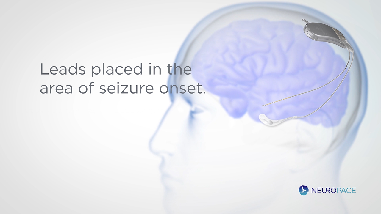 The RNS® System is the first and only closed-loop brain-responsive neurostimulation system designed to prevent epileptic seizures at their source.