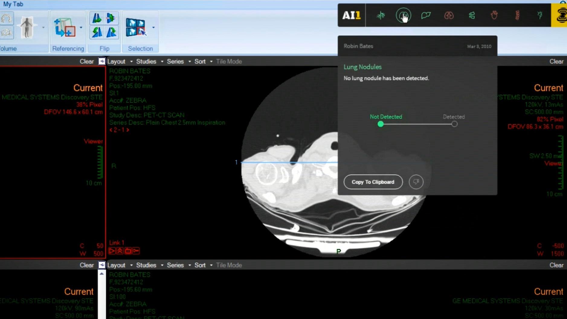 Zebra-Med: AI at your fingertips