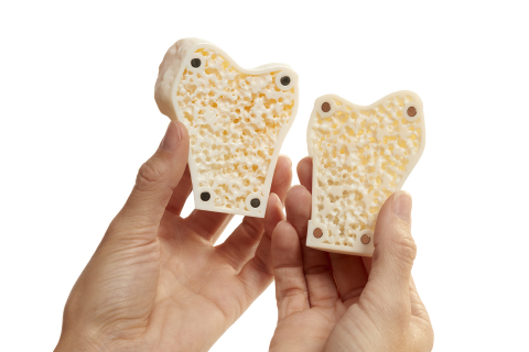 Academic and medical research, as well as training organizations can use GrabCAD Voxel Print to create ultra-realistic anatomical models, such as this cancellous, mesh-like bone, for practicing surgical procedures such as cutting, reaming and drilling. (Photo: Business Wire)