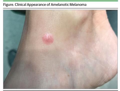 Clinical appearance of amelanotic melanoma (Photo: Business Wire)