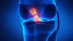 Figure 1 - An illustration depicting a ruptured ACL (Graphic: Business Wire)