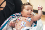 Baby Jasmine was born in late December with hypoplastic left heart syndrome (HLHS) and had her first open-heart surgery at five days old. She is enrolled in the groundbreaking clinical trial at Children's Hospital Los Angeles (Photo: Business Wire)