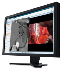 Carestream's Clinical Collaboration Platform supports lesion management, 3D tools, breast tomography, cardiac CT, breast MR and post processing. Multiple modalities can be read from a single workstation.  (Photo: Business Wire)