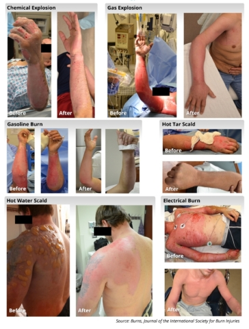 RenovaCare Highlights Burn Patients Sprayed with Stem Cells. (Photo: Business Wire)