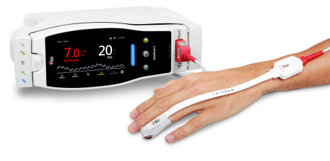 Masimo Radical-7® Pulse CO-Oximeter® with rainbow SET™ PVi® (Photo: Business Wire)