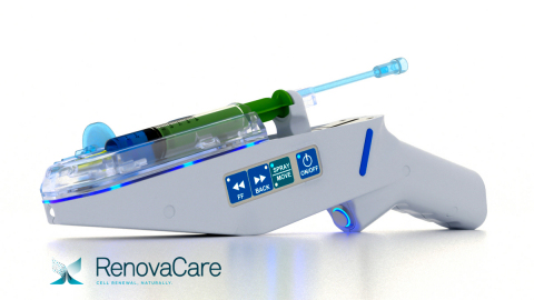 RenovaCare SkinGun™ Ultra-Gently Sprays Patient's Own Stem Cells to Heal Wounds (Photo: Business Wire)