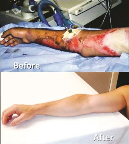 Burned State Trooper Leaves Hospital 4 Days After RenovaCare Stem Cell Spray. Photo source: National Geographic Explorer.