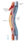 Completed femoropopliteal bypass performed by the DETOUR System from PQ Bypass. (Graphic: Business Wire)