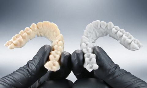 EnvisionTEC is launching an affordable new material, E-OrthoShape, shown right, for the volume production of models on which thermoformed aligners can be created. EnvisionTEC continues to offer the industry's most flexible dental materials library, which also includes E-Model Light, shown left, a premium all-purpose dental and orthodontic modeling material that delivers exceptional accuracy. (Photo: Business Wire)