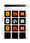 Introducing AmyloidIQ, a new and advanced algorithm that quantifies Amyloid scans for use in subject stratification and clinical trials of Alzheimer's disease therapies. (Photo: Business Wire)