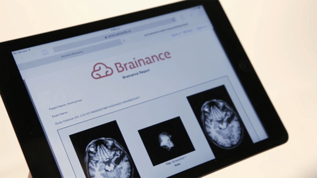 Brainance® MD | Advanced Cloud-Based Neuroimaging Software designed for the Clinical Workflow