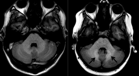MR images of the brain: arrows indicate areas of increased signal activity (R) compared to normal control (L).
