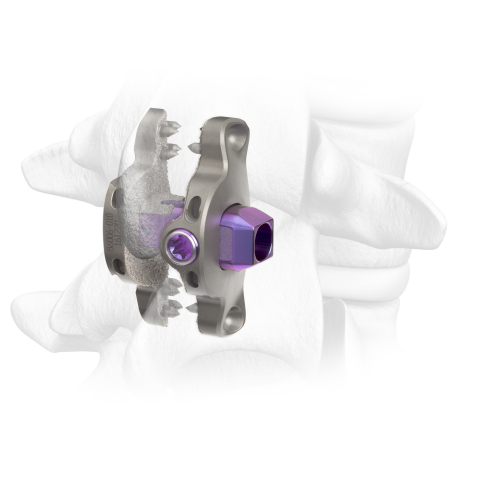 Spinal Elements® Announces Expanded Commercial Release of its Clutch® Interspinous Process Device (Photo: Business Wire)