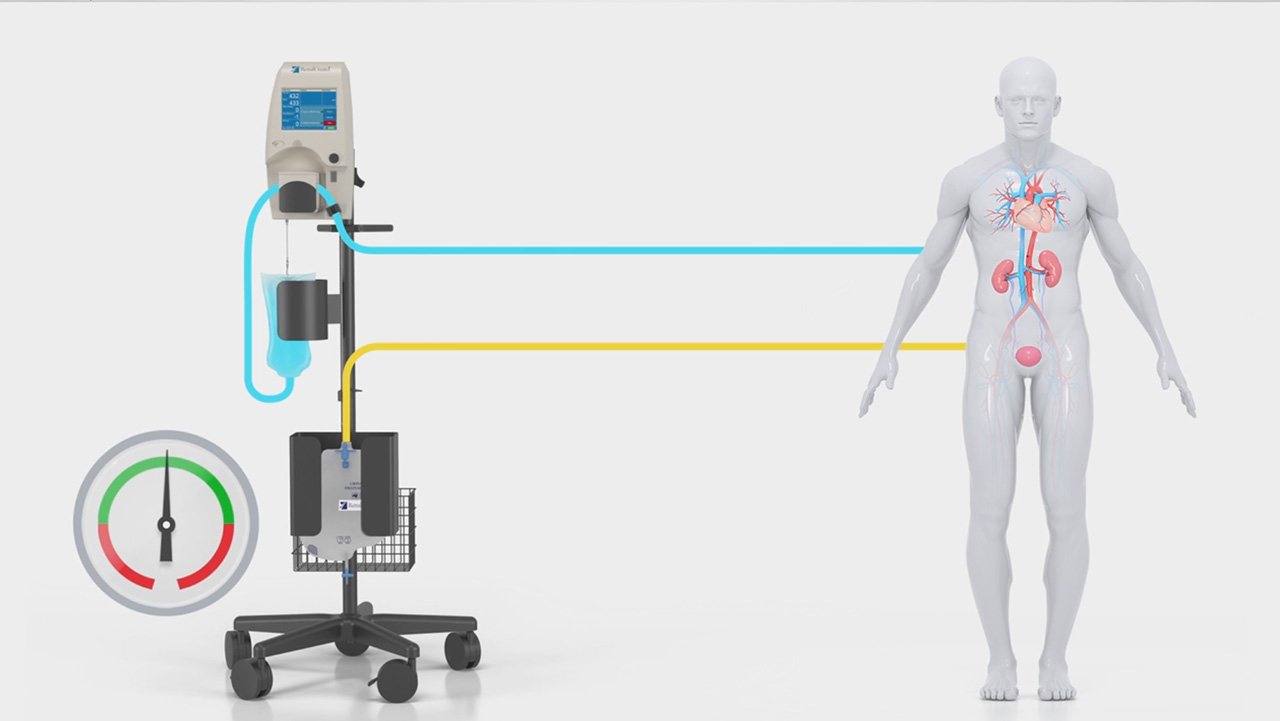 Watch how RenalGuard-Guided Diuretic Therapy is designed to manage fluids, thereby optimizing diuretic therapy for heart failure patients, and may relieve a number of symptoms related to heart failure.