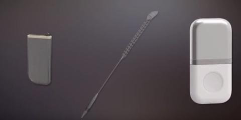 Video Presentation: https://www.youtube.com/watch?v=-l1W1_sgMiM&feature=youtu.be (Photo: Affluent Medical)