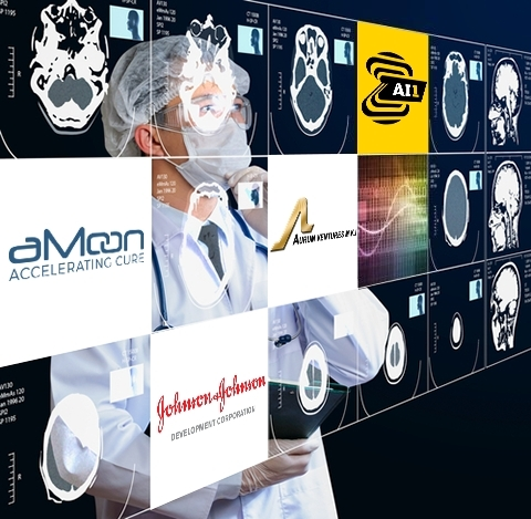 Zebra Medical Vision Raises $30M, unveils the broadest, automated AI based Radiology Chest X-Ray rea ...