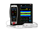Masimo Root® with SedLine® PSi and O3® Regional Oximetry (Photo: Business Wire)