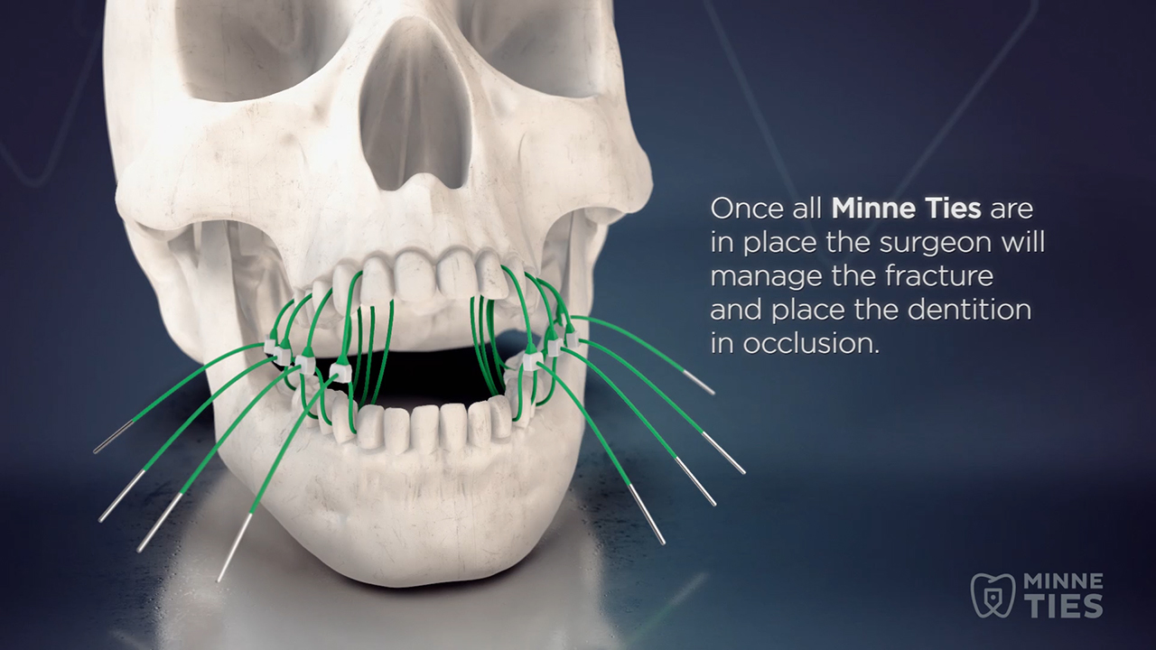 Minne Ties Agile MMF is a non-invasive approach to achieving MMF in a safe, simple and efficient way. See how the sutures work in this short video.