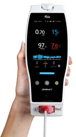 Masimo Radical-7® Pulse CO-Oximeter®(写真:ビジネスワイヤ)