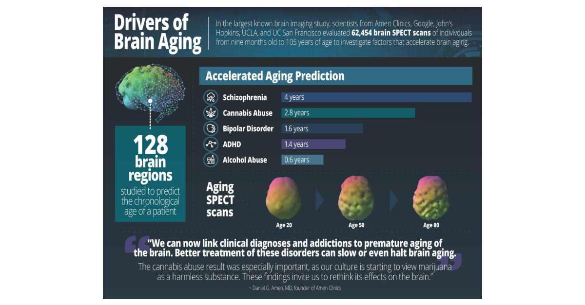 نتيجة بحث الصور عن Largest Brain Study of 62,454 Scans Identifies Drivers of Brain Aging