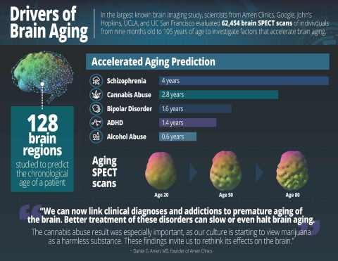 Drivers of Brain Aging (Graphic: Business Wire)