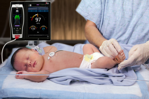 Masimo Root® with Radical-7®, RRa®, and the RAS-45 Infant/Neonatal Sensor (Photo: Business Wire)