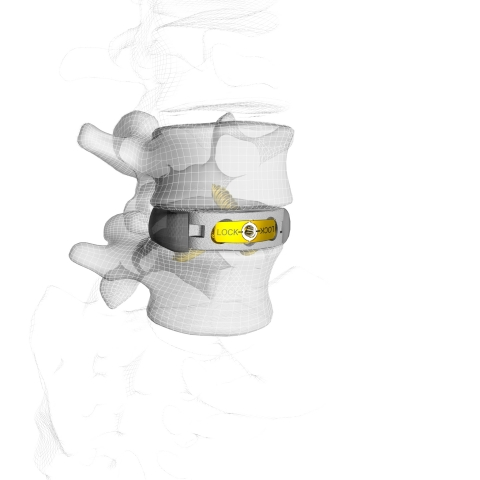 M3™ Stand-Alone Anterior Lumbar (ALIF) System (Photo: Business Wire)