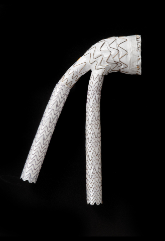 GORE® EXCLUDER® Conformable AAA Endoprosthesis with ACTIVE CONTROL System (Photo: Business Wire)