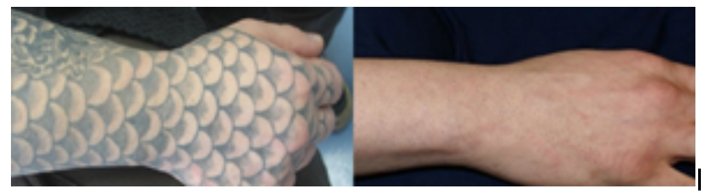 Revitalize Laser Care Brings Leading-Edge Technology and Extensive ...