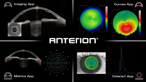 The new Heidelberg Engineering ANTERION® provides the most important anterior segment examinations a ...
