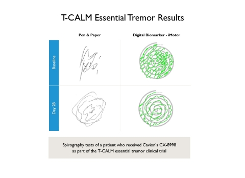 T-CALM Essential Tremor Results (Graphic: Business Wire)