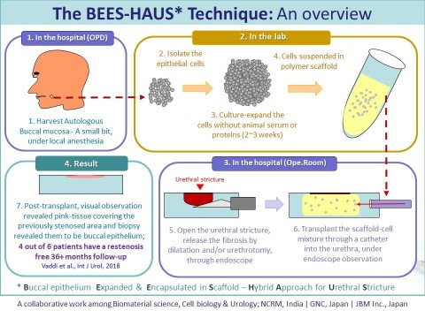 BEES-HAUS, an illustrative overview of the steps from tissue harvest to cell transplant for urethral stricture and a glimpse of the results (Graphic: Business Wire)