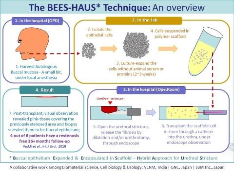 尿道狭窄に対する新しい治療方法:BEES-HAUSの手順と結果 (画像:ビジネスワイヤ)
