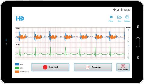 HD Steth app displays heart and ECG waveforms on a smart mobile device (Photo: Business Wire)