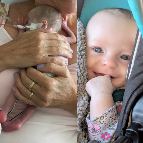 Skai Marguerite Cotterall-Pendleton shortly after birth and now. (Photo: Business Wire)