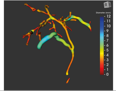 MRCP+ Scan Image (Graphic: Business Wire)