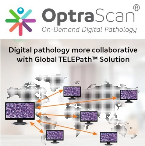 OptraSCAN and Neuberg Diagnostics offering Global TELEPath Network (Graphic: Business Wire)