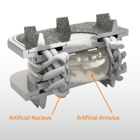 Illustration of the M6-C(TM) artificial cervical disc showing artificial visco-elastic nucleus and fiber annulus structures that mimics the anatomic design of a natural disc. (Photo: Business Wire)