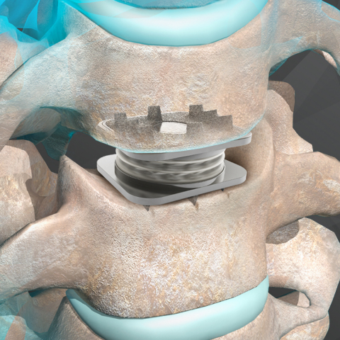 Illustration of the M6-C(TM) artificial cervical disc. (Photo: Business Wire)