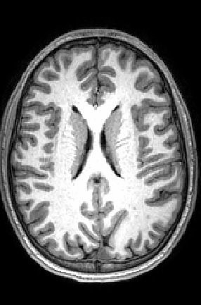 Grey matter can be seen wrapping around the folds of the brain. White matter, comprising a large part of the image, transmits information from one area of grey matter to another. Image courtesy of Dr. Bradley Peterson of Children's Hospital Los Angeles