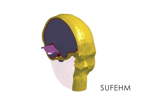 Strasbourg University Finite Element Head Model - Head Injury Prediction Tool (Photo: Business Wire)