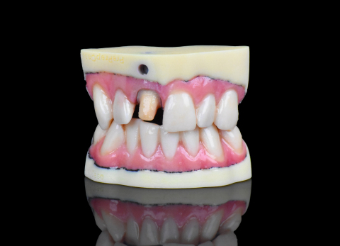 The new Stratasys J720 Dental 3D Printer sets new standards in realism for digital dentistry – leveraging more than 500,000 color combinations. (Photo: Business Wire)