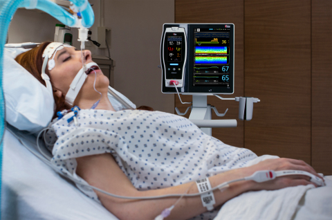 Masimo Root® with SedLine® and O3® (Photo: Business Wire)