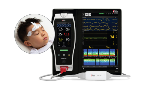 Masimo Root® with Next Generation SedLine® (Photo: Business Wire)
