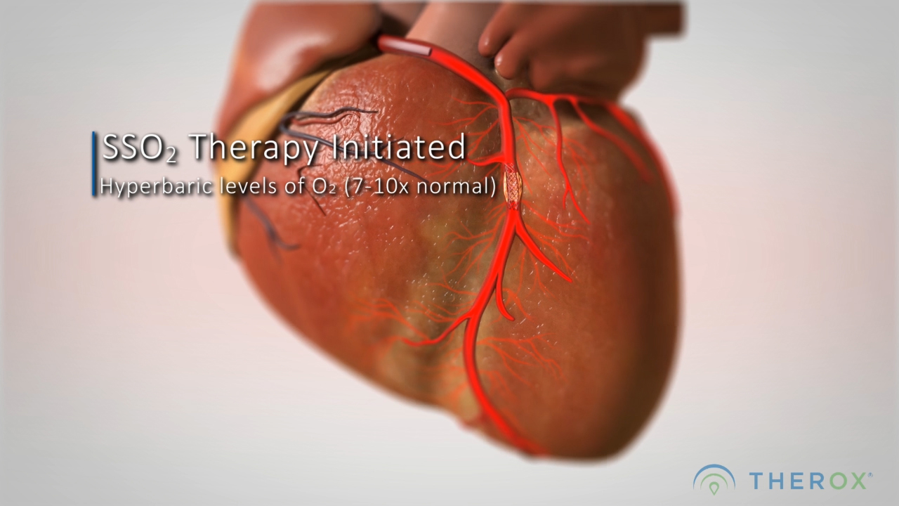 TherOx SuperSaturated Oxygen (SSO2) Therapy Animation