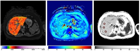 Left to right: LiverMultiScan images showing correlates of fibros-inflammation, iron, and measures of fat (Photo: Business Wire)