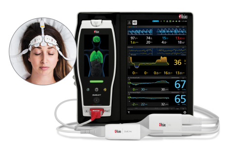 Masimo Root® with O3® Regional Oximetry and Next Generation SedLine® Brain Function Monitoring (Grap ...
