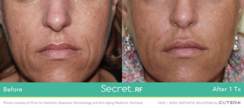 Before and After 1 Treatment with Secret™ RF Microneedling System. Photos courtesy of Clinic for Aes ...