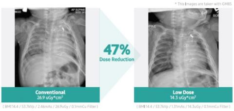 Samsung's advanced noise-reduction algorithm allows devices to produce the same high-quality image using a fraction of the radiation in pediatric patients. (Photo: Business Wire)