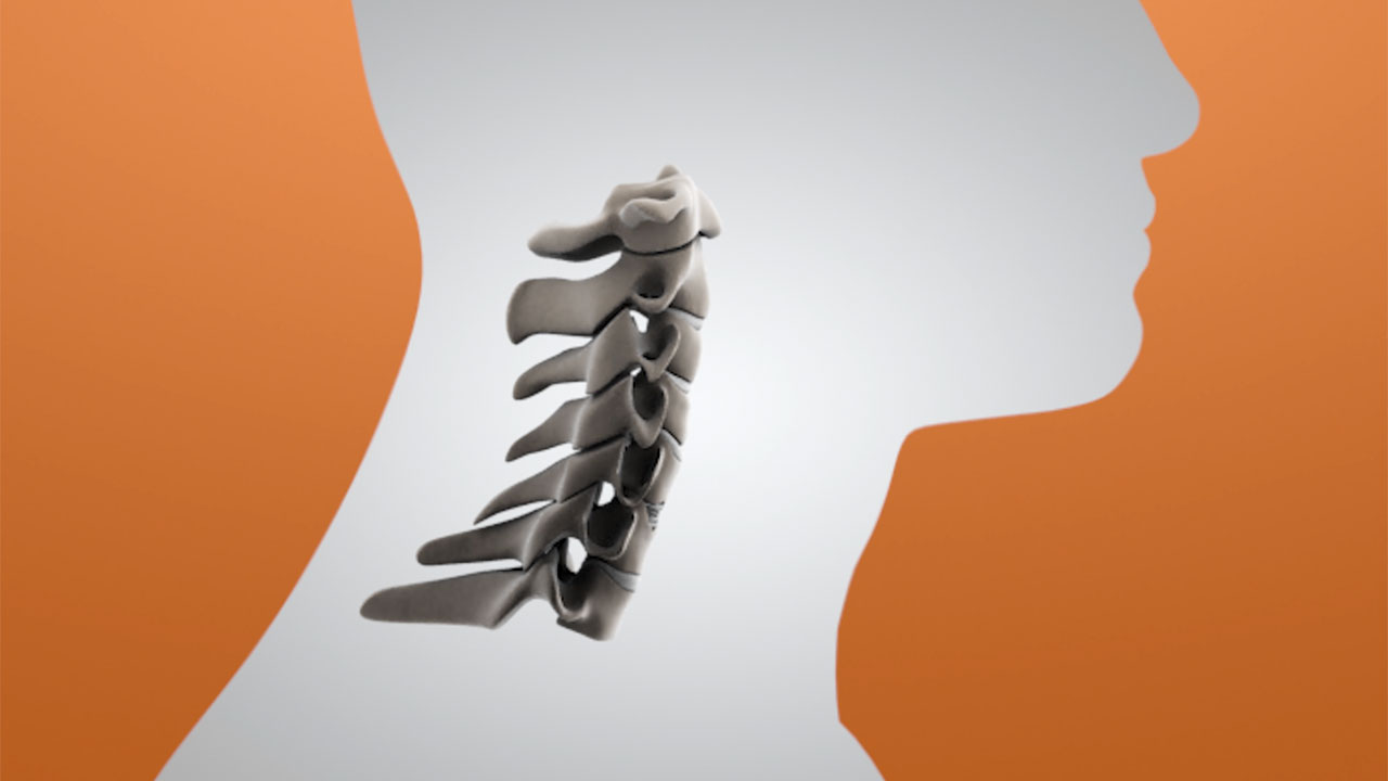 """The M6-C™ artificial cervical disc is designed with an artificial viscoelastic nucleus and fiber annulus that mimics the anatomic structure of a natural disc. It is the only artificial cervical disc available in the U.S. that enables compression or """"shock absorption"""" at the implanted level. The M6-C disc also provides a controlled range of motion when the spine transitions in its combined complex movements."""